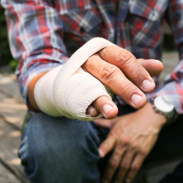 a man with an injured hand